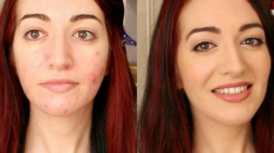 maquiagem pele com acne