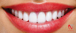 Bọc răng sứ quận 10 tại nha khoa uy tín Dr Ngọc