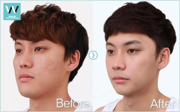 Asian Jaw Shaving 80