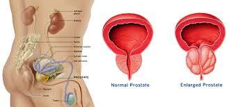 pengobatan alternatif kanker prostat