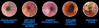 esouphagus