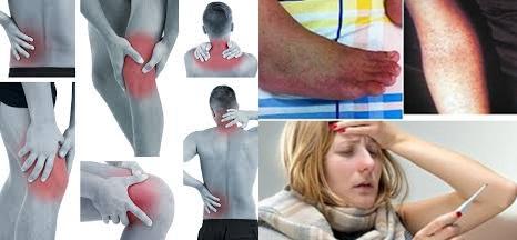 Obat Flu Tulang, Cara Menyembuhkan Penyakit Flu Tulang Secara Alami Sampai Tuntas