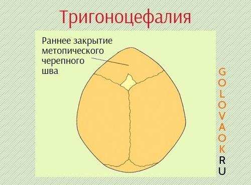 тригоноцефалия схематическое изображение