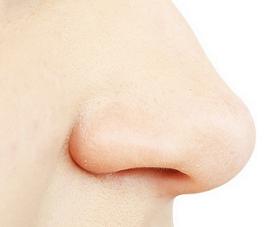 Cara Mengecilkan Hidung Yang Besar dan Lebar