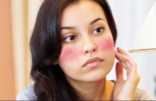 kenali tanda iritasi pada kulit wajah