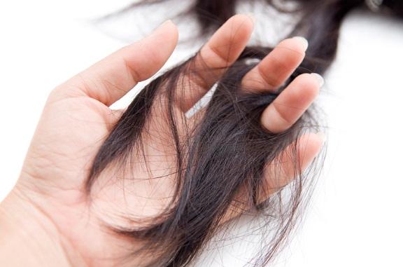 punca rambut wanita gugur