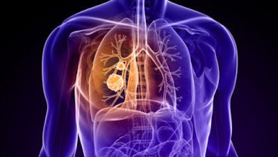 Câncer e Antioxidantes