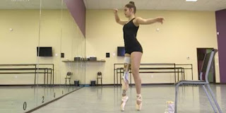 15 year old amputee ballerina