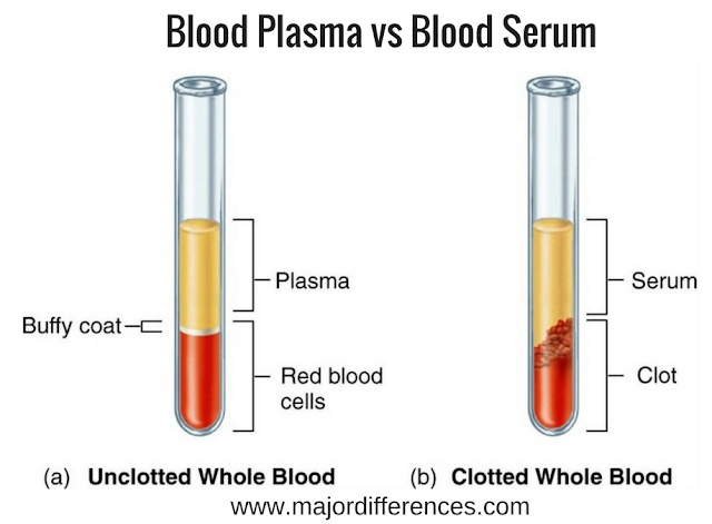 Difference between Blood serum and Blood plasma (Blood serum vs Blood plasma)