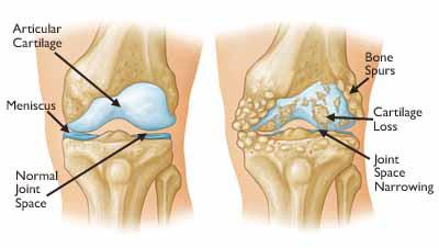 Osteoartritis (pengapuran sendi/tulang)