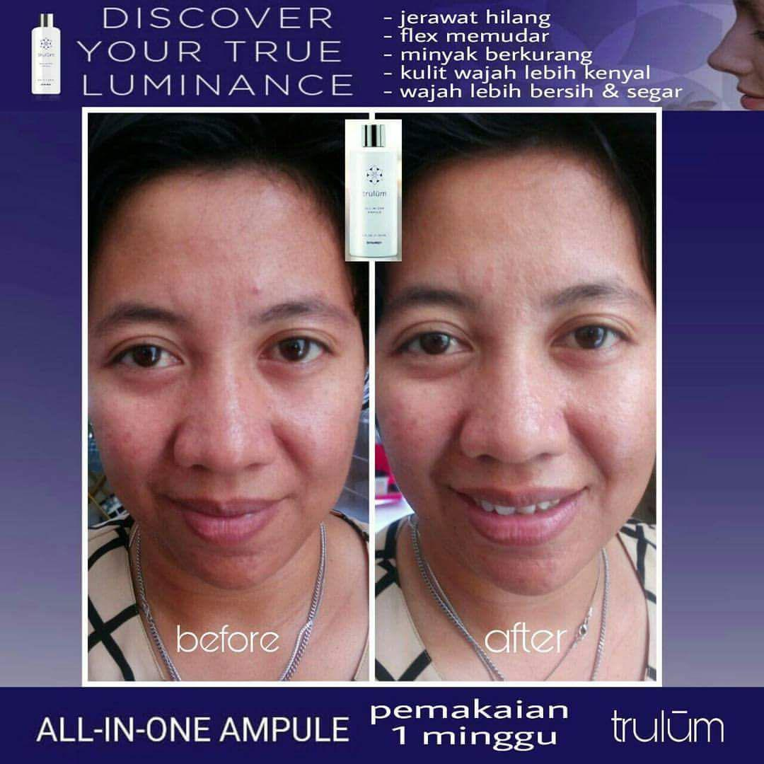 Jual Trulum All In One Ampoule Di Siatas Barita WA: 08112338376