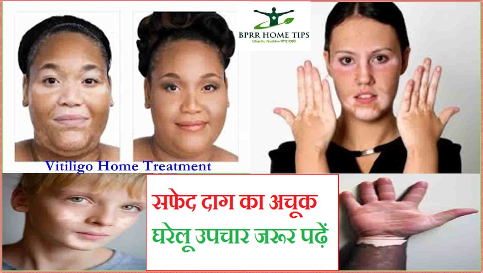 In hindi treatment home spots white on face at 5 Best