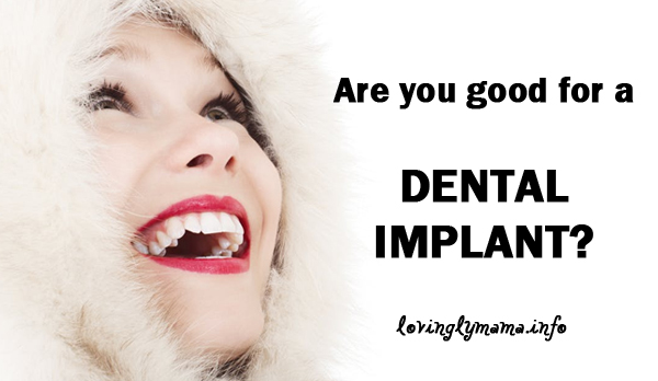 dental implants - nice smile - who can get dental implants