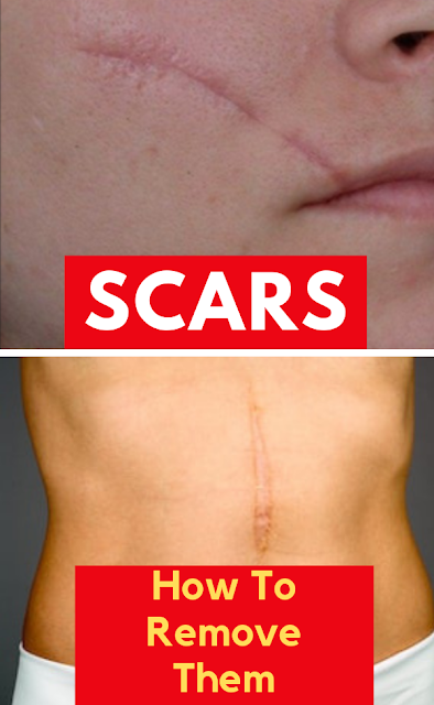 How To Remove Scars