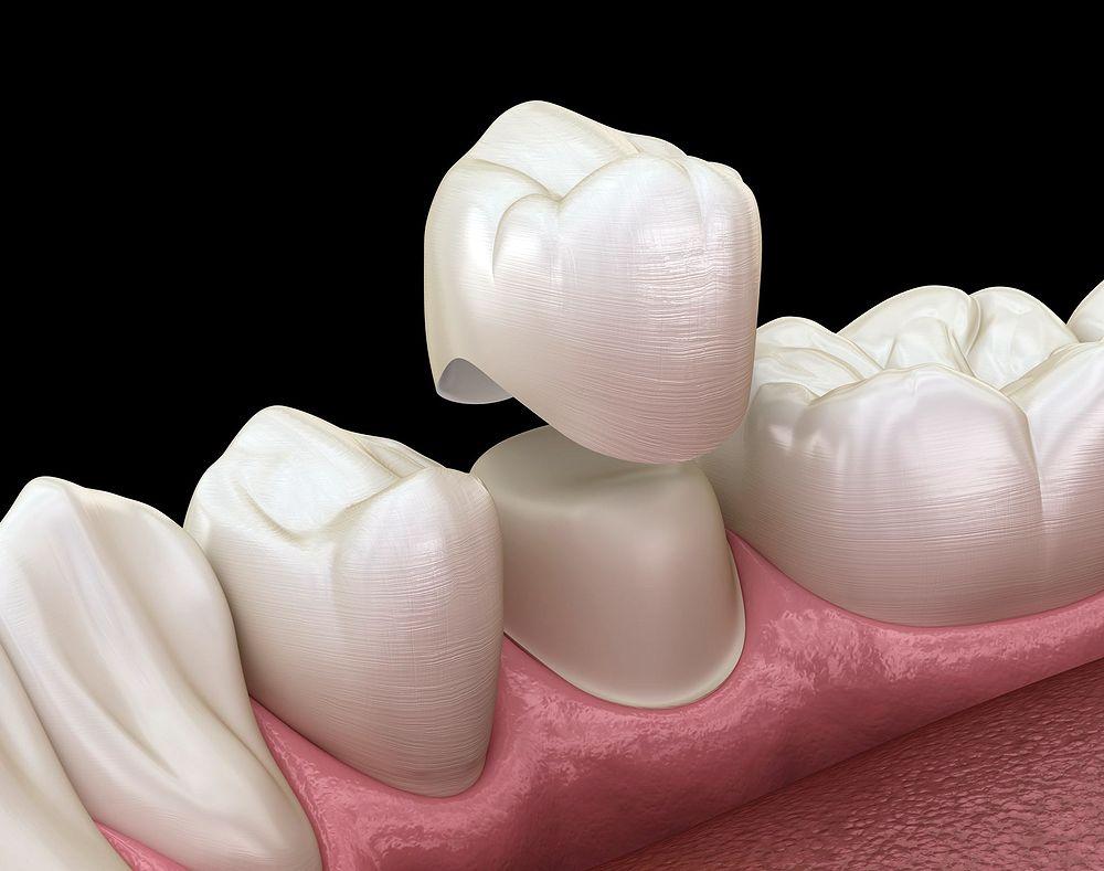 Dental prostheses