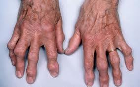 Resultado de imagem para gota ácido úrico sintomas