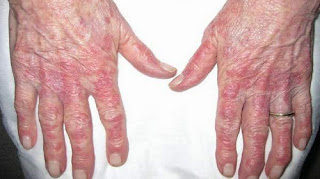 Rashes on the hands of the patient with lupus lupus rash on face images