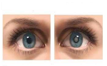 Masalah Komplikasi Penyakit Mata Akibat Diabet