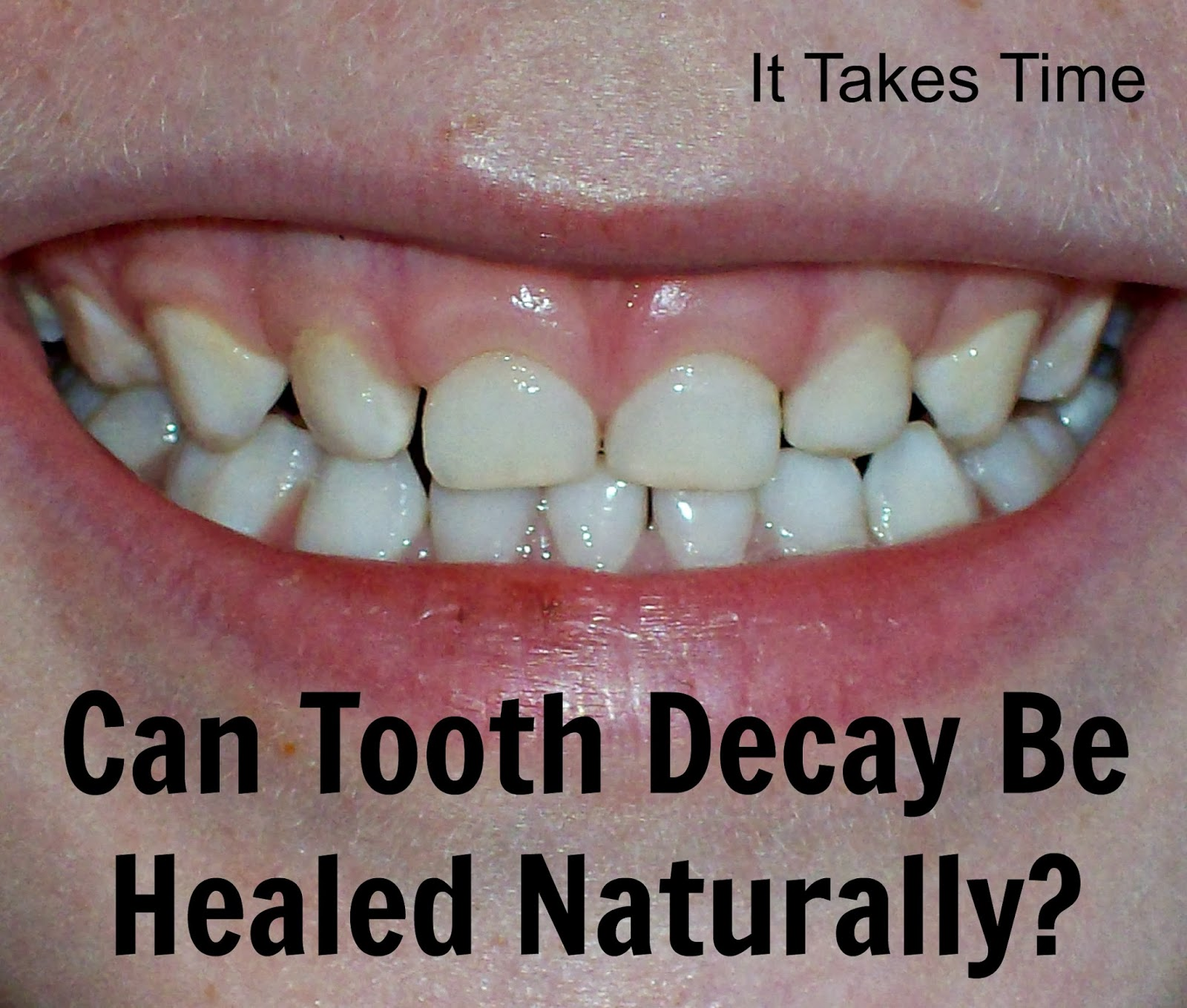 Can Tooth Decay be Healed Naturally? | It Takes Time