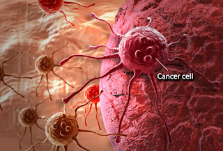 health, cancer, thyroid cancer, chemotherapy