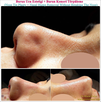 Burun Ucu Estetiği + Burun Kemeri Törpüleme (Nose Tip Plasty + Nasal Hump Removal Without Breaking The Nose)