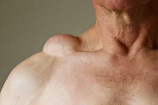 Gimana Cara Mengobati Lipoma Dan Pencegahannya
