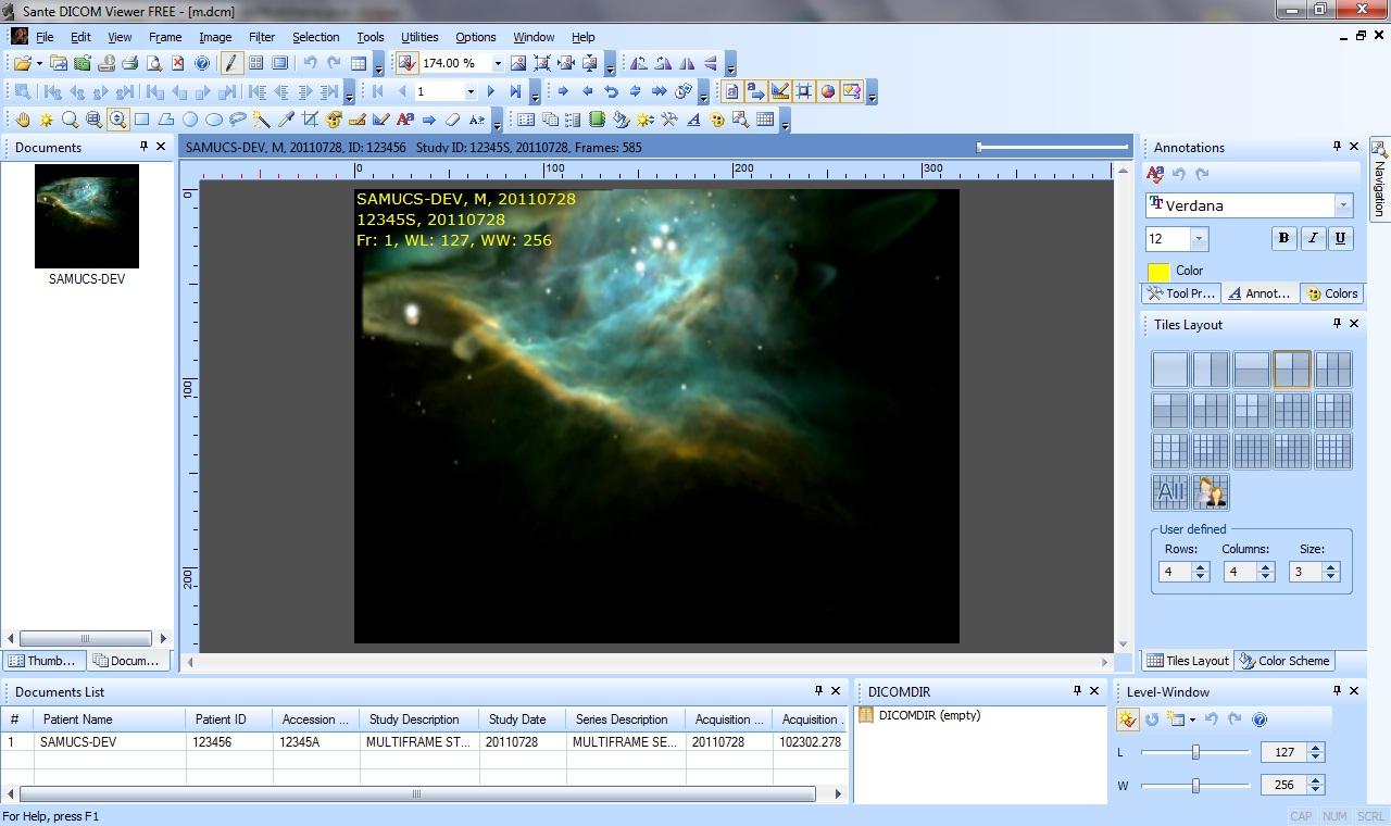 samucs-dev: Creating DICOM Multiframe files (MPEG to DICOM