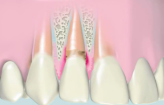 edge coating agency already incurred plaques The Occurrence of Plaque on Teeth