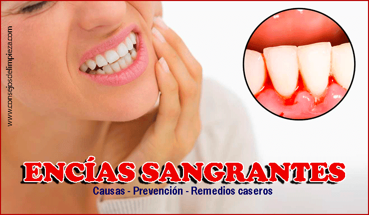 Como detener una hemorragia dental