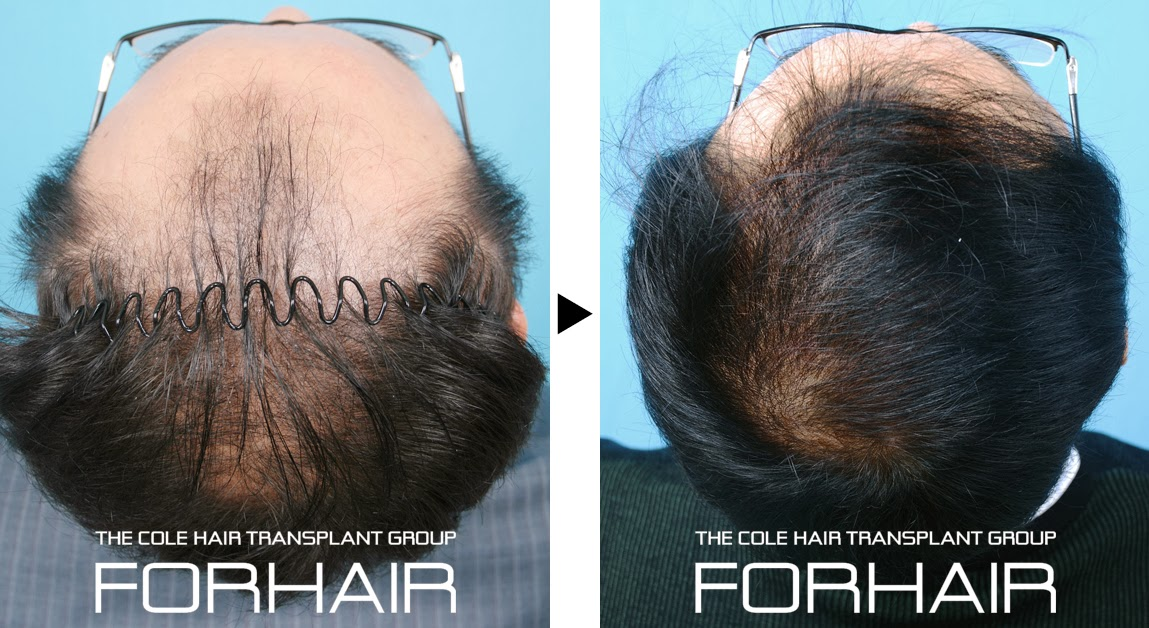 minimally invasive surgery, fue hair korea, hair loss korea, forhair korea