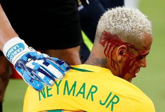 Neymar bloodied and battered as he's forced off field in World Cup qualifier (photos)