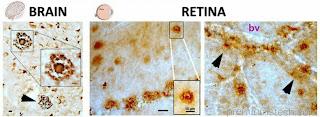 Retinal imaging developed for Alzheimer's Detection