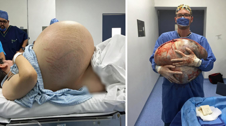woman with giant ovarian cyst weighing as 10 babies thought to be