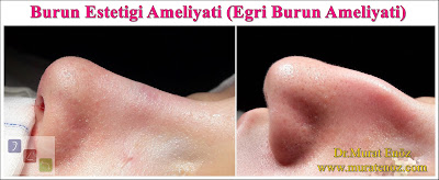Burun estetiği ameliyatı - Bayan burun estetiği - Açık teknik burun estetiği ameliyatı - Eğri burun tedavisi - Eğri burun ameliyatı - Female Nose Aesthetic Surgery - Nose Jobs For Women - Nose Reshaping for Women - Best Rhinoplasty For Women Istanbul - Female Rhinoplasty Istanbul - Nose Job Surgery for Women - Women's Rhinoplasty - Nose Aesthetic Surgery For Women - Female Rhinoplasty Surgery in Istanbul - Female Rhinoplasty Surgery in Turkey - Eğri burun nedenleri - Eğri burun tanımı - Eğri burun estetiği - Eğri burun ameliyatı - Eğri burun tedavisindeki zorluklar - Crooked nose - Deviated nose - Twisted nose - Deflected nose - Asymmetric nose - Scoliotic nose - Eğri burun - C burun - S-shaped crooked nose deformity -  Rhinoplasty Istanbul - Rhinoplasty in Istanbul - Rhinoplasty Turkey - Rhinoplasty in Turkey – Rhinoplasty doctor in Istanbul – ENT doctor in Istanbul - Nose Job in Istanbul - Before and after rhinoplasty photos