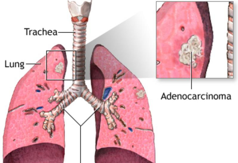 Stage 4 Adenocarcinoma Lung Cancer Life Expectancy