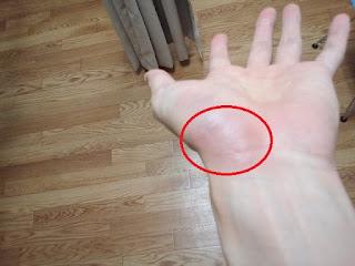 怪我の写真2