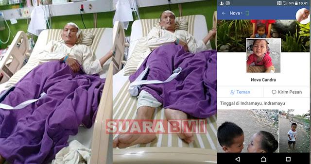 TKI Asal Indramayu Harus Menderita Struke Akibat Gumpalan Darah Di Kepalanya, Begini Kondisinya