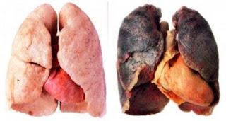 Câncer de Pulmão Imagem 01