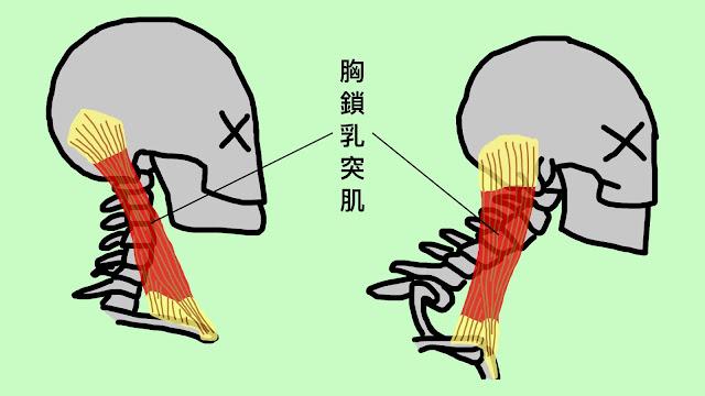好痛痛 胸鎖乳突肌 解剖列車 脖子 胸部 頭骨