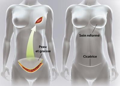 reconstruction mammaire tunisie