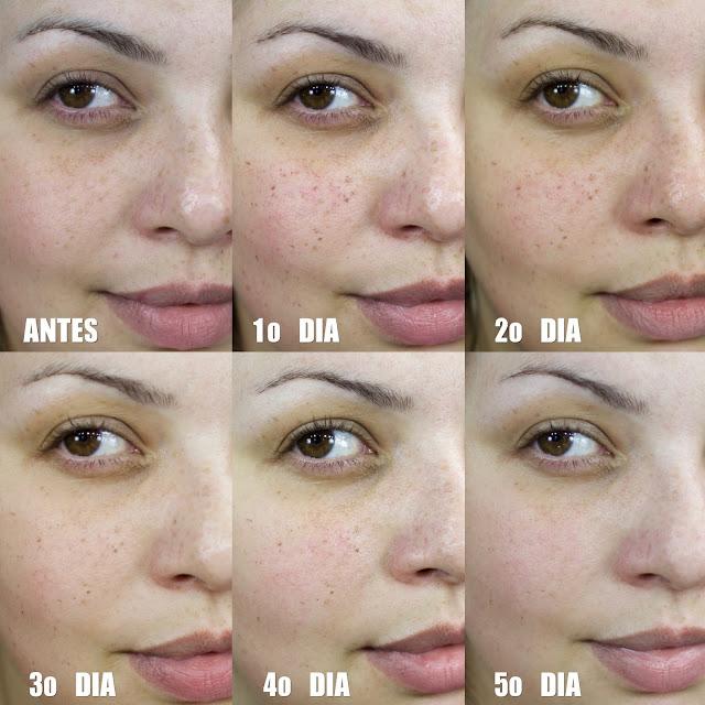 Luz Pulsada, Sardas, Clareamento, Beleza, Pele, Doux Dermatologia, Silvia Zimbres, Alessandra Lindmayer, Universo Feminino, Vídeo, Cuidados Faciais