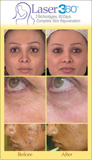 laser-360-skin-rejuvenation Lose the Lines with Laser!Laser 360