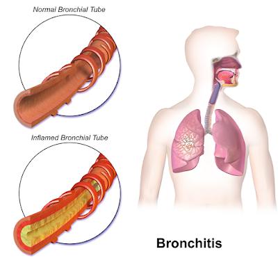 ब्रोंकाइटिस