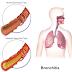 ब्रोंकाइटिस (श्वसनीशोथ) के कारण, लक्षण, निदान और घरेलू उपचार