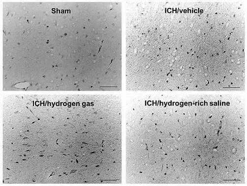 図:水素の脳卒中治療効果