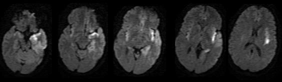 Dr Balaji Anvekar's Neuroradiology Cases: Herpes Encephalitis MRI