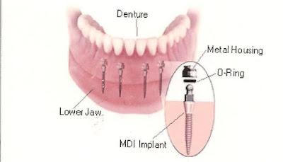 Cấy ghép mini Implant là gì ?