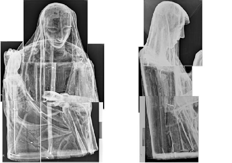 Radiografías de la Virgen