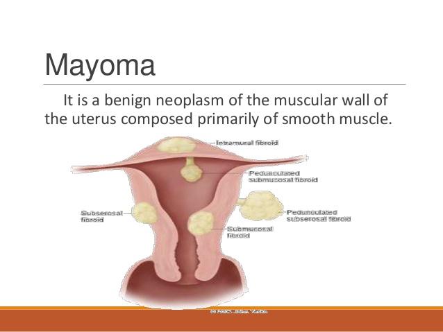 AIM GLOBAL HEALTH AND WEALTH: What is MYOMA