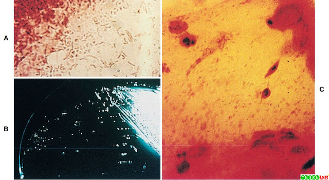 Microscopic morphology of Helicobacter pylori Gram-stained from a colony